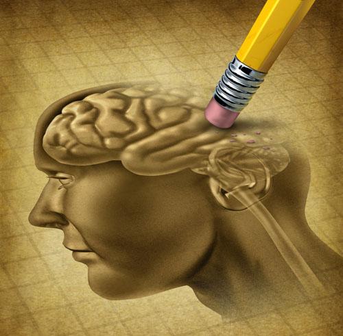dementia brain web - コピー